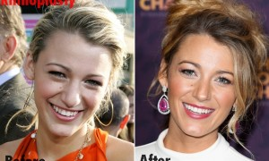 Blake Lively nose job plastic surgery before and after photos,
