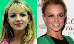 Best Celebrity Nose Jobs Before And After Pictures