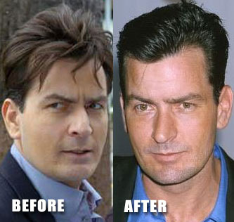 Charlie Sheen Nose Job before after Photos