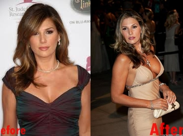 Daisy Fuentes Breast Implants Plastic Surgery Before and After Boobs Job