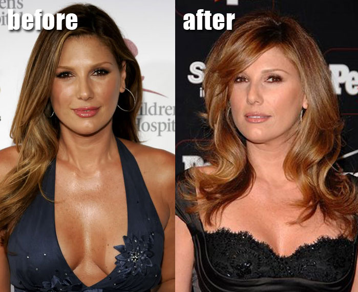 Daisy Fuentes Nose Job Plastic Surgery Before and After Photos, pictures