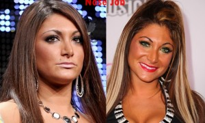Deena Nicole Cortese plastic surgery nose job pictures, Deena Jesey Shore nose job