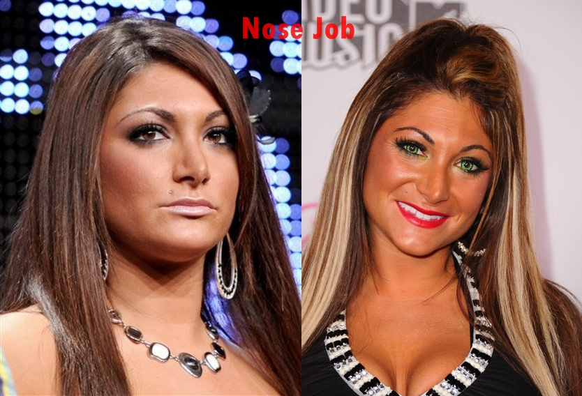 Deena Nicole Cortese plastic surgery nose job pictures, Deena Jesey Shore nose job