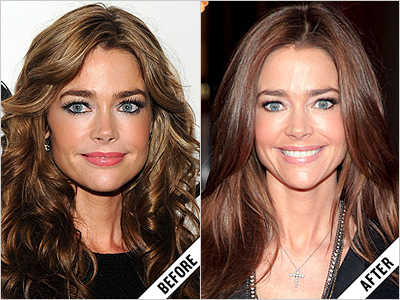 Denise Richards Plastic Surgery Face Before and After Photos
