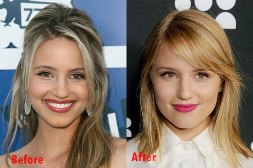 Dianna Agron Nose Job plastic Surgery Before and After Pictures