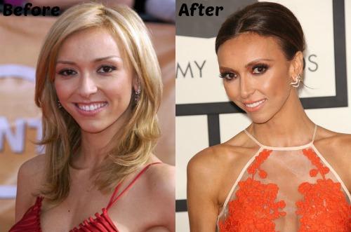 Giuliana Rancic Nose Job plastic Surgery Before and After PhotosGiuliana Rancic Nose Job plastic Surgery Before and After Photos