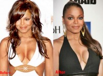 Janet Jackson Breast Implant Plastic Surgery Before and After Boobs Job Photo