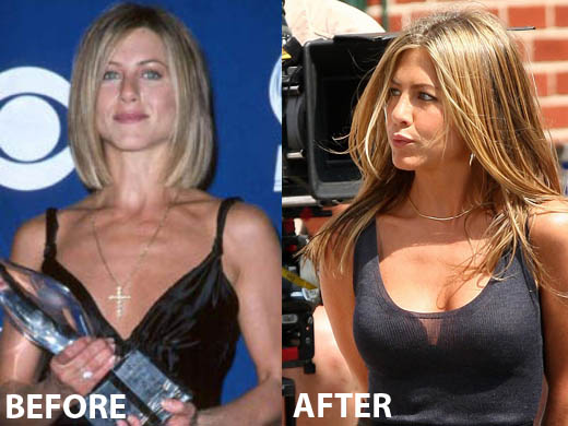 Jennifer Aniston Breast Implants Plastic Surgery Before and After Boobs Job