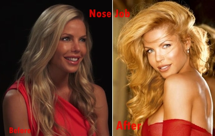 Jessica Canseco Nose Job plastic Surgery Before and After Photos, pics