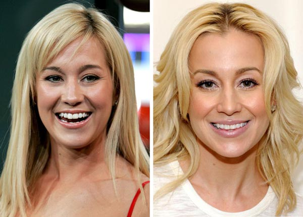 Kellie Pickler Face Cosmetic plastic Surgery Before and After Photos