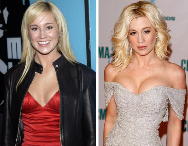 Kellie Pickler Face Cosmetic plastic Surgery Before and After Photos,