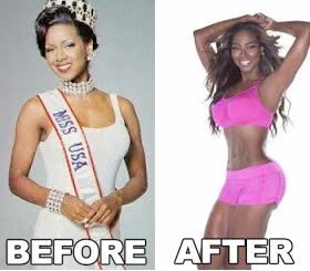 Kenya Moore butt implants Plastic Surgery Before and After Pictures. photos