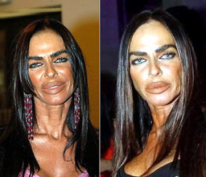 Michaela-Romanini-Plastic-Surgery-Before-And-After-Pictures
