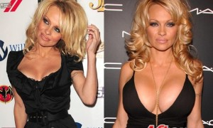 Pamela Anderson breast implants Surgery Before and After Boob Job