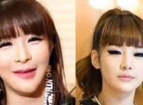 Park Bom Plastic Surgery Before And After Photos, Pictures reasons