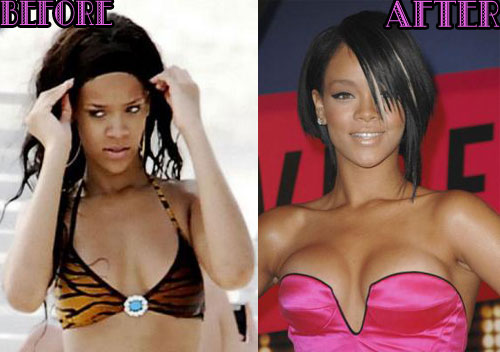 Rihanna Boobs Job plastic Surgery Before and After breast implants Photos