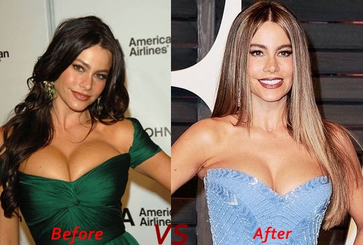 Breast Implants Before And After Katy Perry Breast Katy Perry Boob ...