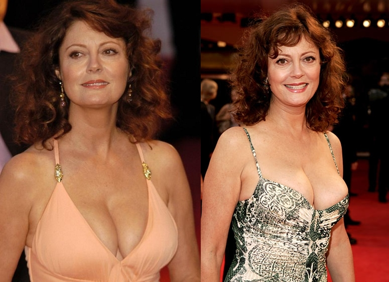 Susan Sarandon Breast Implants Plastic Surgery Before And After Boobs Job