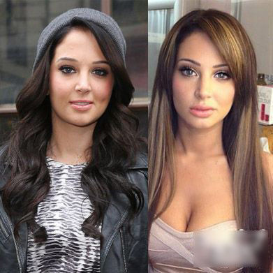 Tulisa nose job Plastic Surgery Before and After Photos