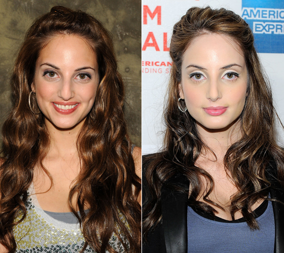 Alexa Ray Joel nose job Plastic Surgery before and After Photos,pictures