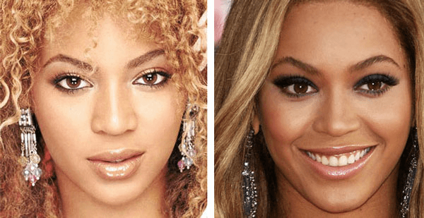 Beyonce plastic surgery before and after nose job photos, pictures