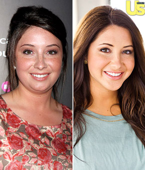 Bristol Palin Jaw plastic surgery before and after face photo,