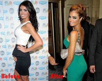 Chloe Sims butt implants plastic surgery before and after photos,