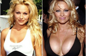 Coco Austin breast implants plastic surgery before and after boobs job,