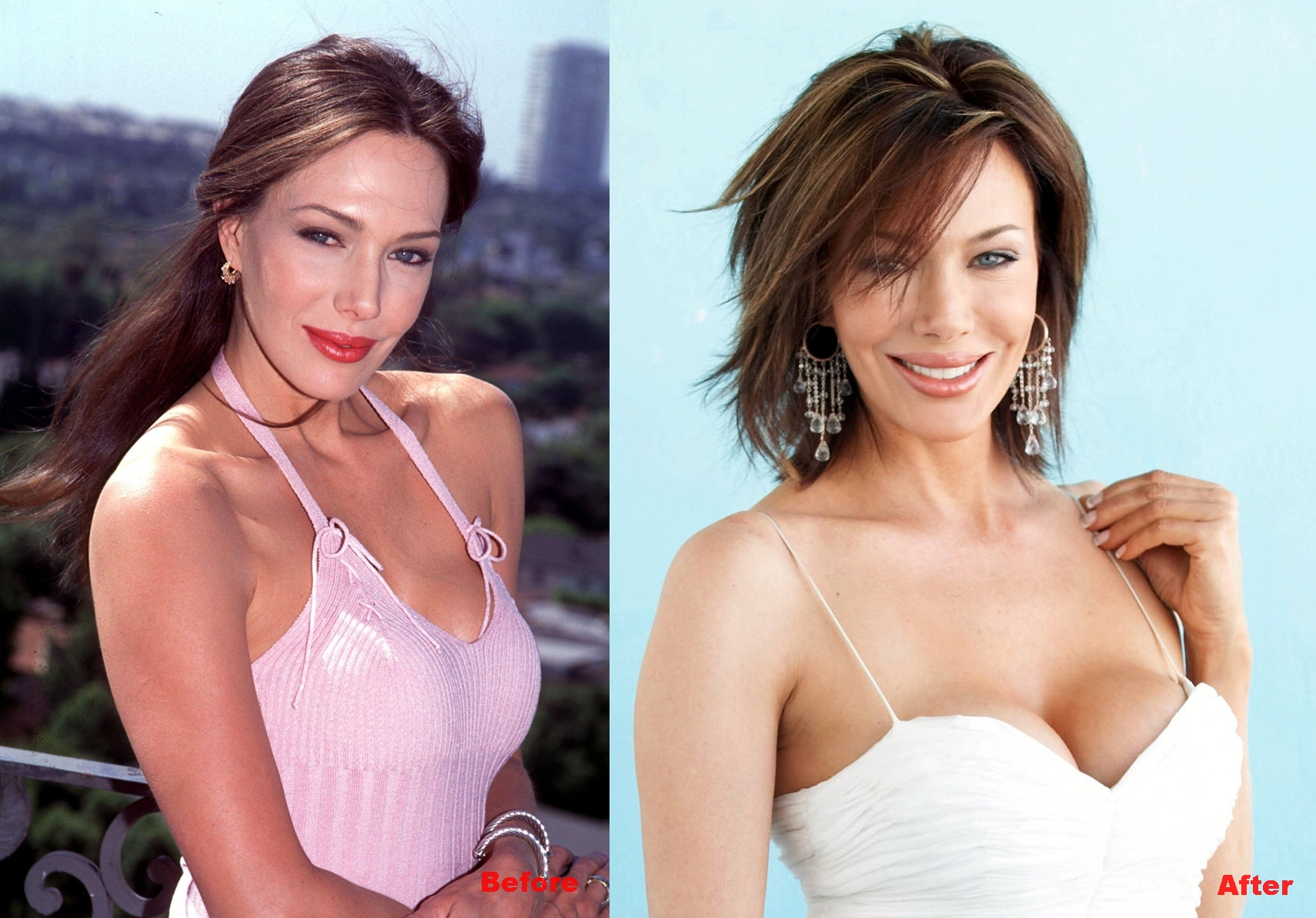Hunter Tylo breast implants plastic surgery before and after boobs job