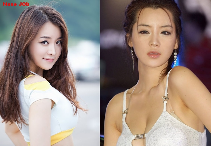 Im Ji Hye plastic surgery before and after photos