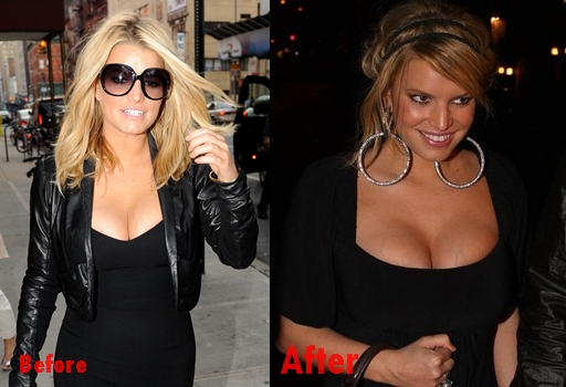 Jessica Simpson breast implants plastic surgery before and after boobs job photos,