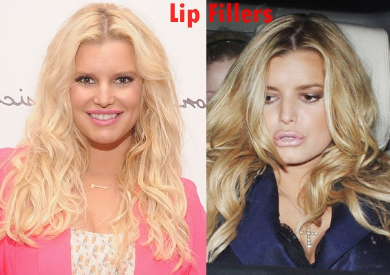 Jessica Simpson lip fillers plastic surgery before and after photos