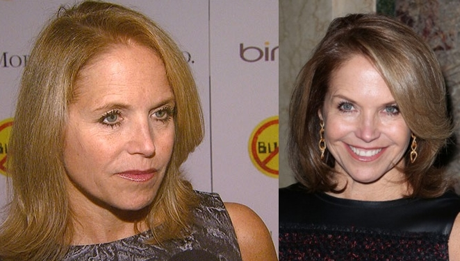 Katie Couric plastic surgery before and after pictures