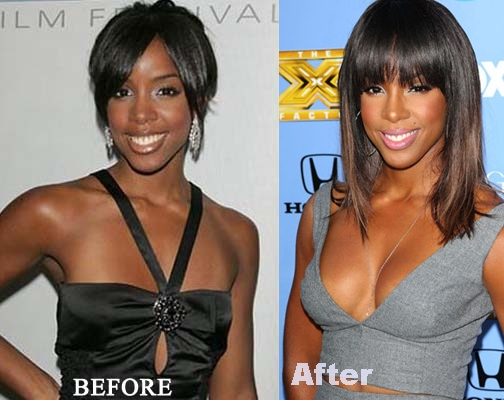 Kelly Rowland breast implants plastic surgery before and after pictures