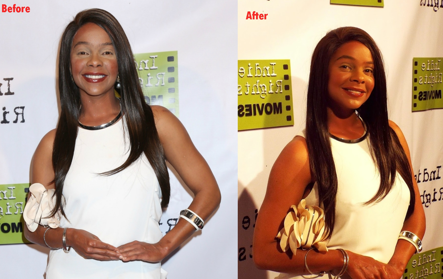 Lark Voorhies plastic surgery before and after pictures Cosmetic surgery