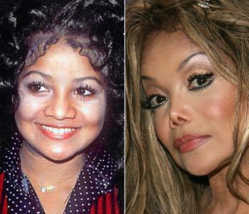 Latoya Jackson nose job plastic surgery before and after photos