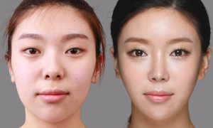Lee Yu Bi plastic surgery before and after nose, eyes photos