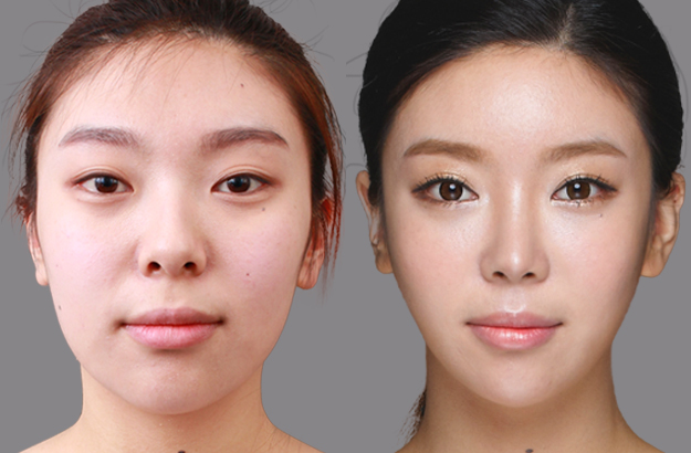 Model Undergoes Revision Asian Rhinoplasty with ...