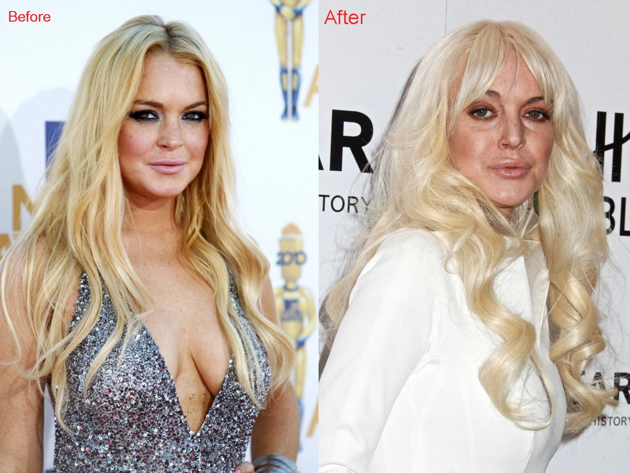 Lindsay Lohan lip injections surgery before and after augmentation photos. pictures