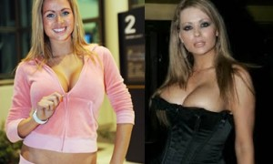 Nicola McLean Breast Implants Plastic Surgery Before And After Boobs Job Pictures