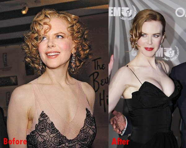 Nicole Kidman breast implants plastic surgery before and after boobs job pics
