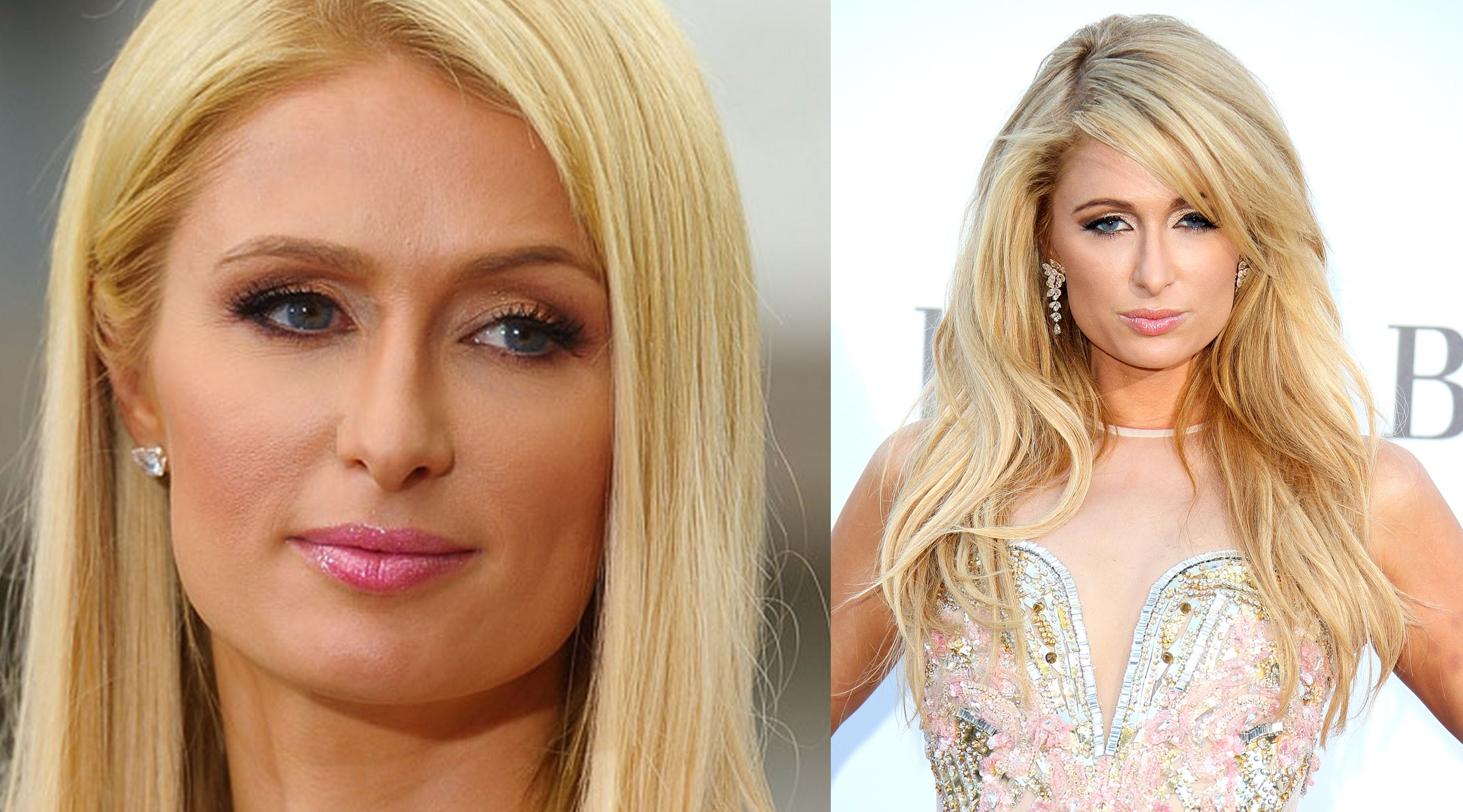 Paris Hilton nose job plastic surgery before and after Rhinoplasty photos ,