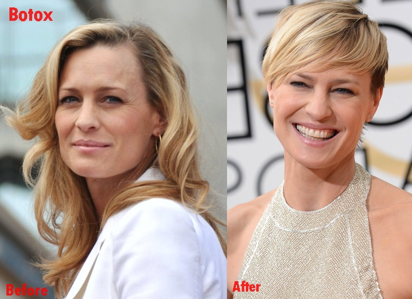 Robin Wright plastic surgery face before and after Botox photos