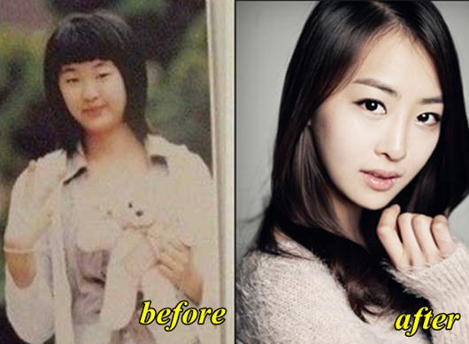 Sistar Dasom plastic surgery before and after Photos
