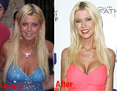 Tara Reid breast implants plastic surgery before and after boobs job photos, pictures