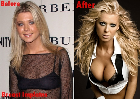 Tara Reid breast implants plastic surgery before and after boobs job photos