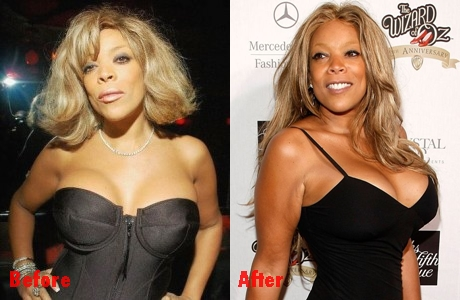 Wendy Williams plastic surgery before and after breast implants photos