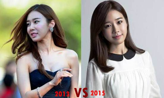 Yoo In Na Plastic Surgery Before And After Photos
