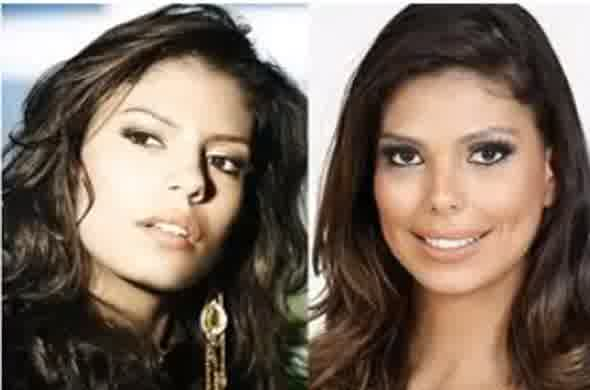 Bruna Felisberto plastic surgery disaster before and after pictures