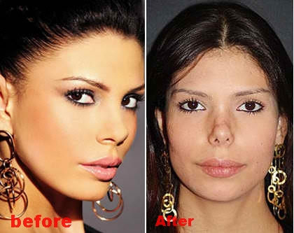 Bruna Felisberto plastic surgery disasterbefore and after pictures
